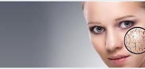 peaux sèches cosmétique