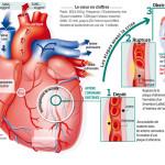 infarctus espritphyto