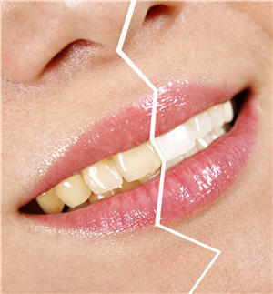 tabac et dentition