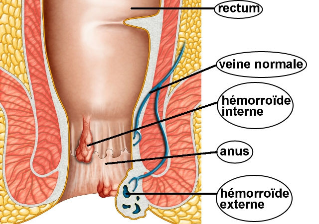 cancer colorectal hemorroides